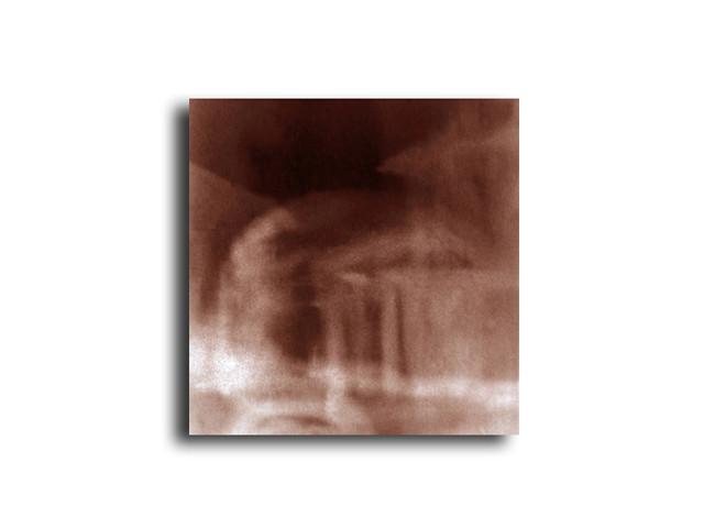 metalprint 0109110